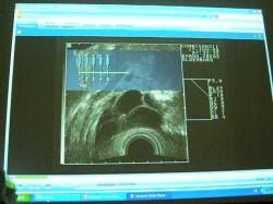 Estimulación ovárica controlada en FIV