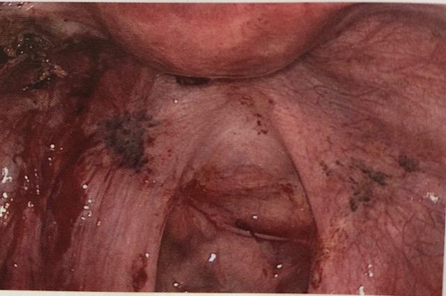 Imagen laparoscópica de impactaciones intraabdominales de Endometriosis (ASRM grado IV).